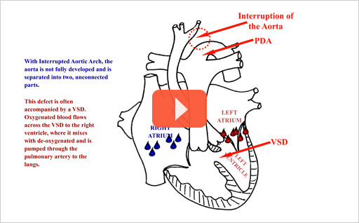 interrupted aortic arch animation