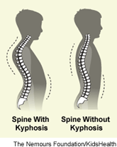 Kyphosis and other spinal conditions are treated at the Spine & Scoliosis Center